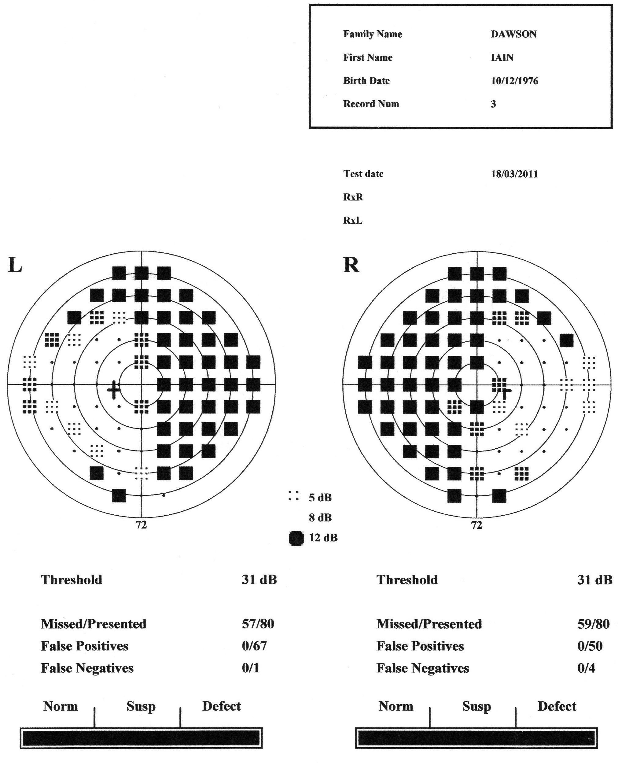 Iains eyesight tri team dawson iains eye chart nvjuhfo Images